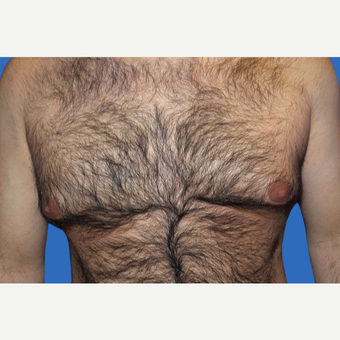 35-44 year old man treated with Male Breast Reduction before 3168659