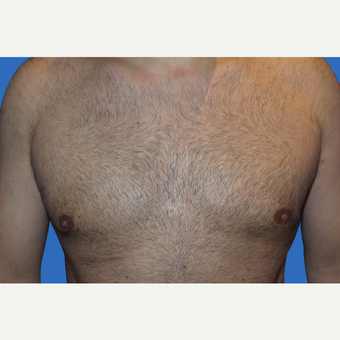 35-44 year old man treated with Male Breast Reduction after 3168659