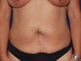 Tummy Tuck before 1115428