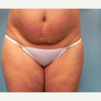 35-44 year old woman treated with Slim Lipo before 1779179