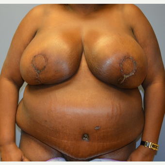 55-64 year old woman treated with Breast Reconstruction after 3168157