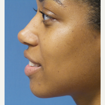 25-34 year old woman treated with African American Rhinoplasty after 3098272