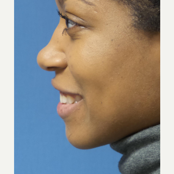25-34 year old woman treated with African American Rhinoplasty before 3098272