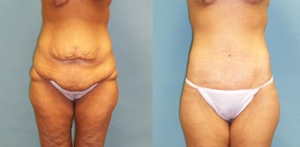 Lower bodylift with liposuction to the upper back and fat grafting to the buttocks and bilateral breast lift with augmentation,