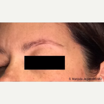Nonsurgical Browlift with Ultherapy® after 3701606