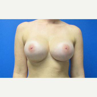 28 year old woman Breast Implant Revision after 3696464