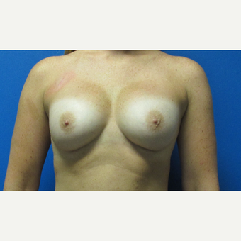 28 year old woman Breast Implant Revision before 3696464