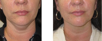 Chin liposuction/Liposculpture before 1007697