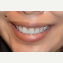 25-34 year old woman treated with Lip Lowering after 3027621