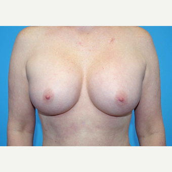 35-44 year old woman treated with Breast Implants after 3440895