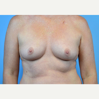 35-44 year old woman treated with Breast Implants before 3440895