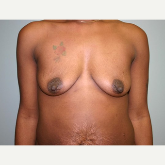Breast Augmentation before 3560725