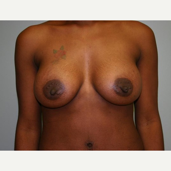 Breast Augmentation after 3560725