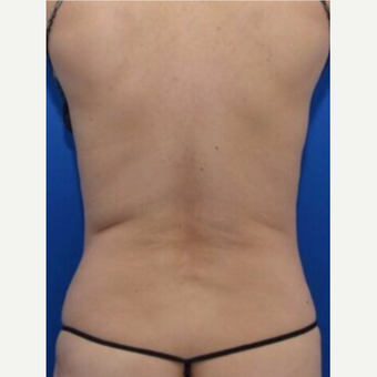 Revision Laser Liposuction