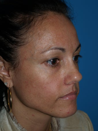 """V"" Lift for cheek enhancement using HA filler before 1222988"