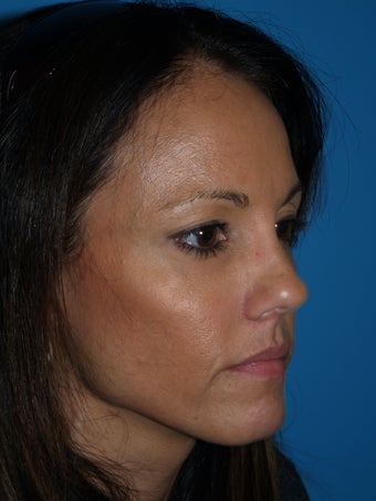 """V"" Lift for cheek enhancement using HA filler after 1222988"