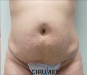 Full abdominoplasty, complemented by Waterjet assisted liposuction before 3021988