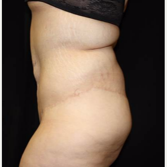 25-34 year old woman treated with Body Lift