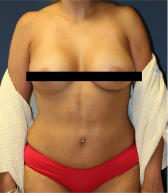 45-54 year old woman treated with Mommy Makeover after 3241065