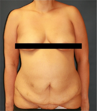 45-54 year old woman treated with Mommy Makeover before 3241065