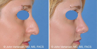 25-34 year old woman treated with Nose Surgery before 3810073