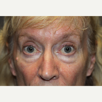 65-74 year old woman treated with Eyelid Surgery before 3286727