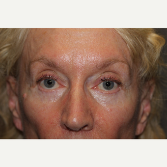 65-74 year old woman treated with Eyelid Surgery after 3286727