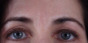 "Botox to forehead ""11"" lines after 240863"