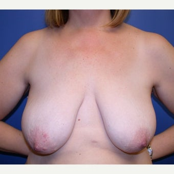 45-54 year old woman treated with Breast Lift with Implants before 1581381