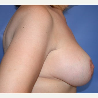 45-54 year old woman treated with Breast Lift with Implants 1581381