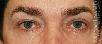 Eye Bag Surgery after 887211