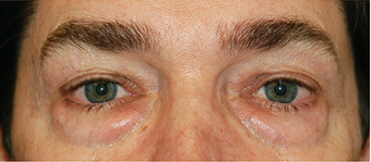 Eye Bag Surgery before 887211
