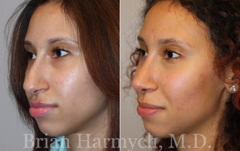 16 year-old female before and one year after Rhinoplasty before 3447322