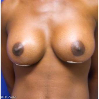 35-44 year old woman treated with Breast Lift with Implants after 3032909