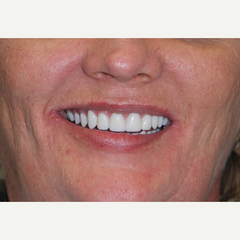 All-on-4 Dental Implants after 2378548