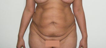 29 years female looking for a tummy tuck before 983087