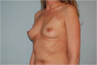 Breast Augmentation before 246849