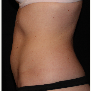 25-34 year old woman treated with truSculpt after 3564732