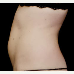 25-34 year old woman treated with truSculpt before 3564732