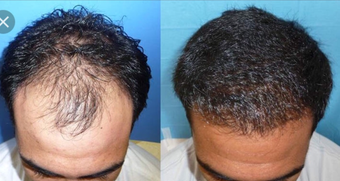 35-44 year old man treated with Hair Transplant before 3745460