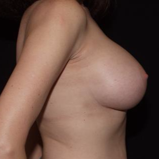 45-54 year old woman treated with Breast Implants after 3506843