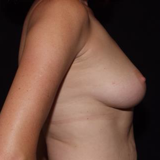 45-54 year old woman treated with Breast Implants before 3506843