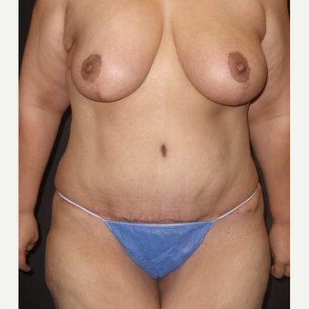 35-44 year old woman treated with Mommy Makeover after 3434596