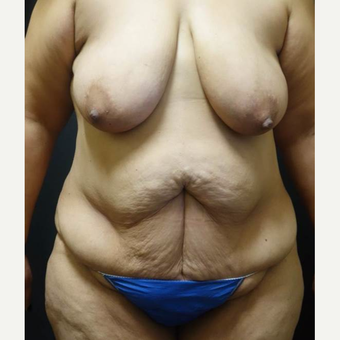 35-44 year old woman treated with Mommy Makeover before 3434596