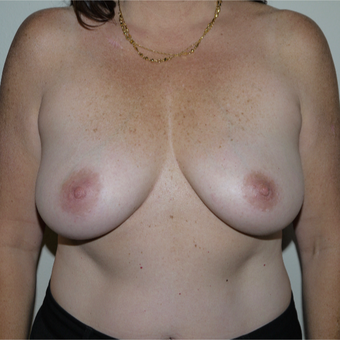 35-44 year old woman treated with Breast Reduction before 3077631