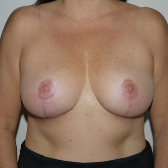 35-44 year old woman treated with Breast Reduction after 3077631
