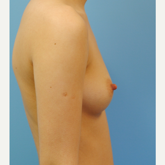 20 year old woman, saline Breast Augmentation, A to D cup, 380 cc high profile before 3623379