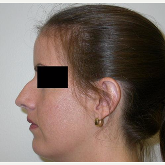 25-34 year old woman treated with Rhinoplasty before 3743217
