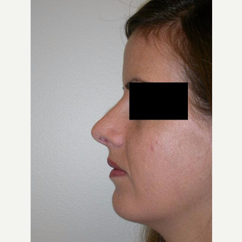 25-34 year old woman treated with Rhinoplasty after 3743217