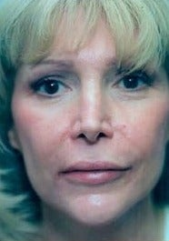 Juvederm to lips and NLF after 1581009